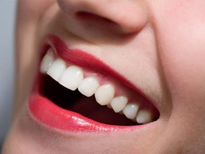 Tips Agar Gigi Tetap Putih dan Sehat