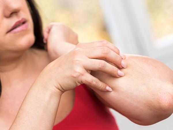 Hati-hati! Orang Dengan Prurigo 'Berdarah Manis' Ternyata Lebih Sensitif Dengan Gigitan Serangga