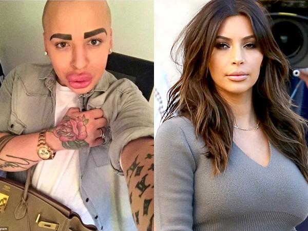 50 Kali Operasi Plastik Demi Mirip Kim Kardashian, Wajah Pria Ini Malah Terlihat Aneh?