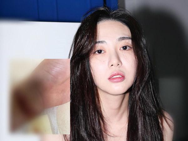 Posting Luka Sayatan, Mina Ungkap Keburukan FNC Buatnya Coba Bunuh Diri Lagi?