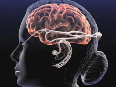 Bagaimana Menjaga Kesehatan Otak?