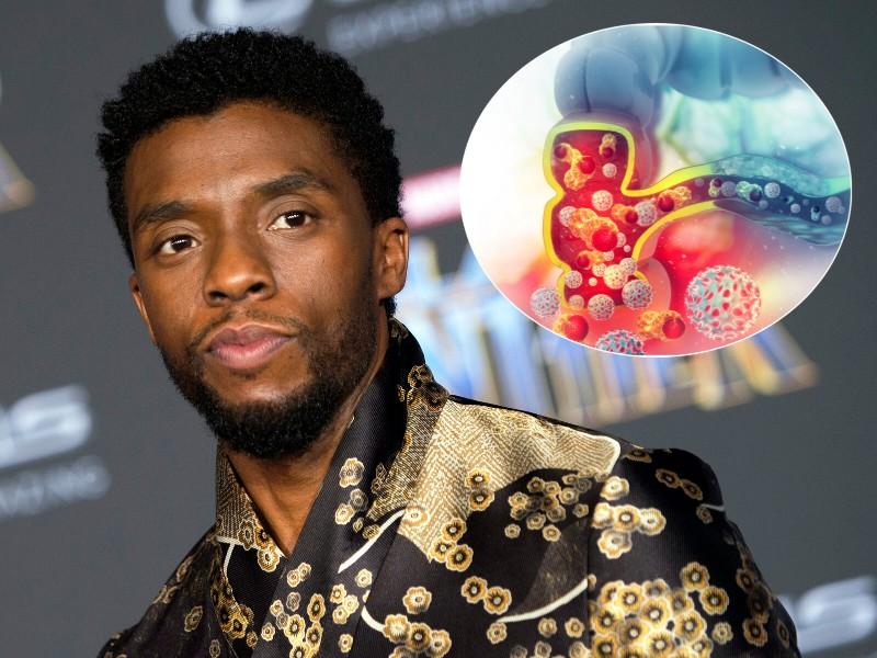 Kenali Kanker Kolon yang Diderita Chadwick Boseman 'Black Panther'