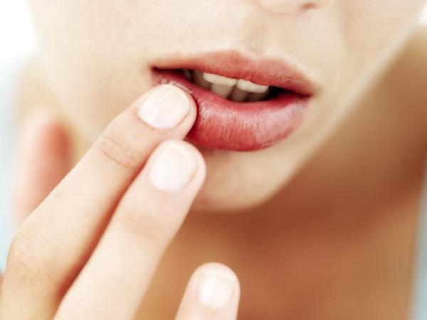 Ini Alasan Tak Boleh Basahi Bibir yang Kering Saat Puasa dengan Air Liur!