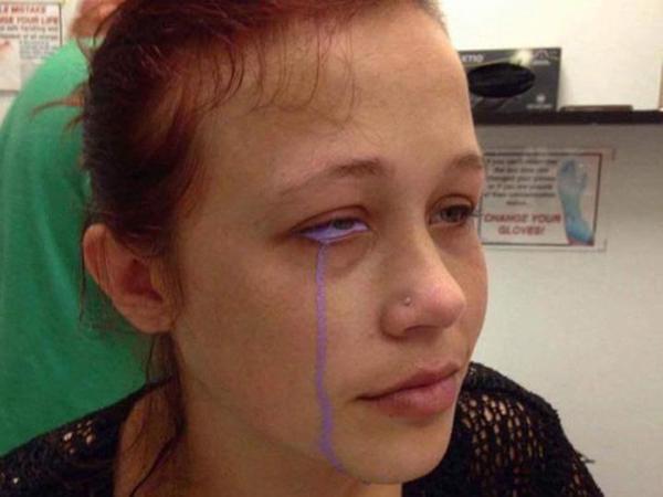 Wanita Ini Keluarkan Air Mata Berwarna Ungu, Kok Bisa?