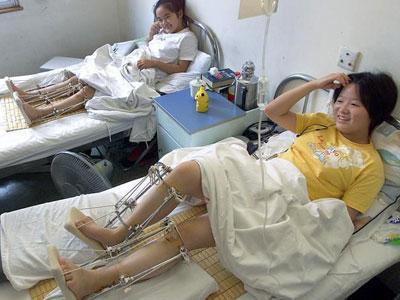 Operasi Perpanjang Tubuh Ngetren di Korea