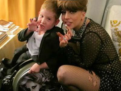 Lady Gaga Jumpa Fans Cilik Saat Konser di Dublin