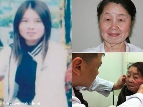 Duh, Sebuah Sindrom Aneh Buat Wanita 28 Tahun Ini Tampak Seperti Nenek 70 Tahun!