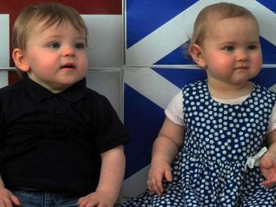 Wow, Bayi Kembar Ini Ada di Negara Berbeda