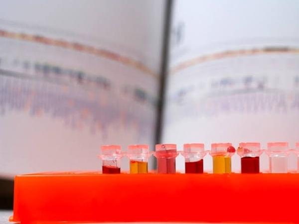 Heboh Belasan Ribu Plasma Darah Buatan Cina Terkontaminasi HIV