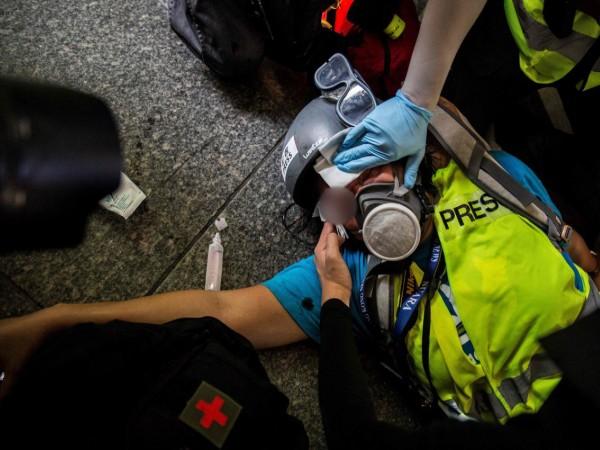 Jurnalis Indonesia Buta Permanen Setelah Ditembak Peluru Karet Oleh Polisi Hongkong