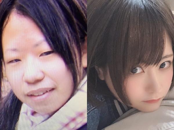 Perempuan Asal Jepang, Operasi Plastik Habiskan Rp 560 Juta, Hasilnya?