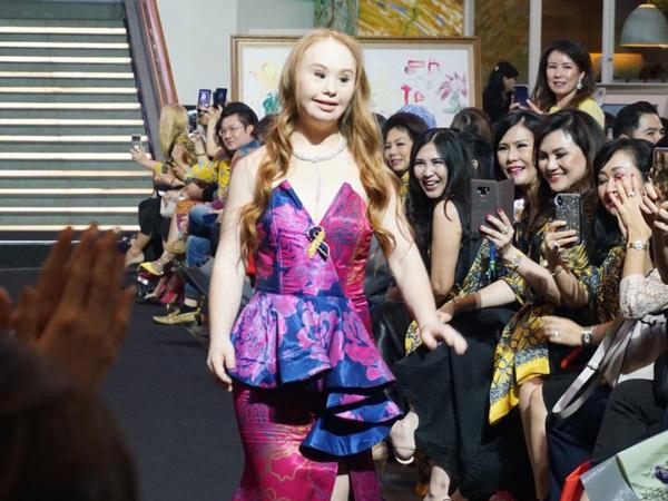 Mengenal Madeline Stuart, Model Down Syndrome Pertama yang Mendunia