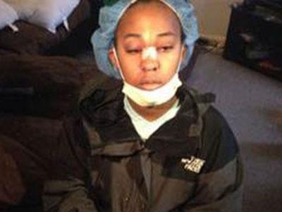 Wow, Berkat Kacamata Gadis Ini Selamat Dari Terjangan Peluru