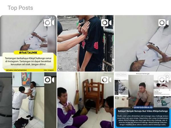 Viral di Media Sosial, Ini Bahayanya Melakukan 'Skip Challenge'