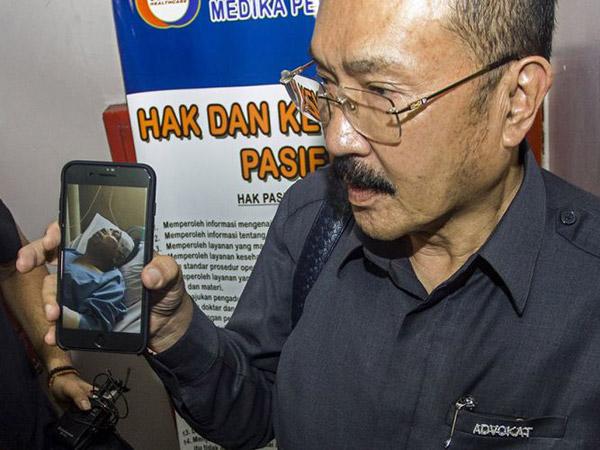 Pengacara Sudah Pesan Satu Lantai RS untuk Kecelakaan Setya Novanto, 'Kolaborasi' dengan Dokter?