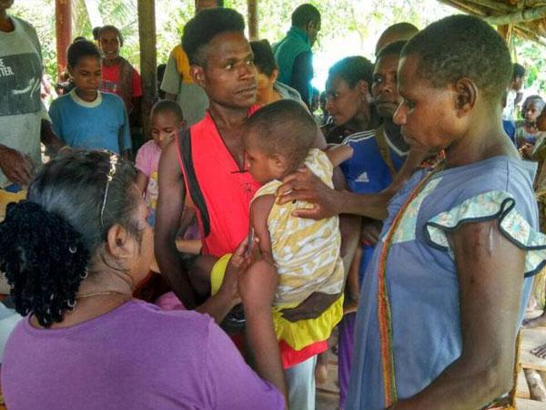 Miris, Puluhan Anak Meninggal dan Ratusan Lainnya Terkena Wabah Campak di Asmat