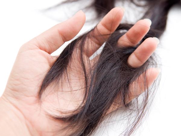 Cari Tahu Apakah Kerontokan Rambut yang Dialami Normal atau Tidak