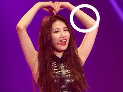 Duh, Suzy miss A Alami Cedera Hingga Berdarah Saat Konser di Beijing!