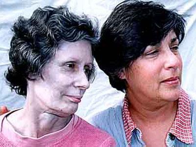 Gara-gara Obat Tetes Hidung, Wanita Ini Berkulit Perak
