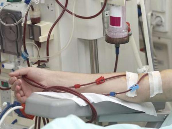 Penting, Begini Penjelasan Dokter Soal Alat Cuci Darah yang Sempat Disebut Prabowo Dipakai 40 Kali