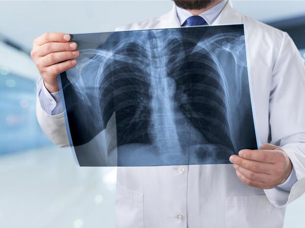 Pasien Kanker Paru Alami Masalah Berobat Sejak Pandemi COVID-19