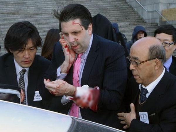 Inilah Kronologis Penyerangan Terhadap Mark Lippert, Duta Besar AS untuk Korea Selatan