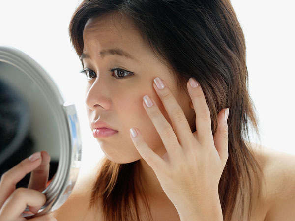 Hal Penting yang Perlu Diketahui Tentang Alergi Terhadap Produk Kecantikan