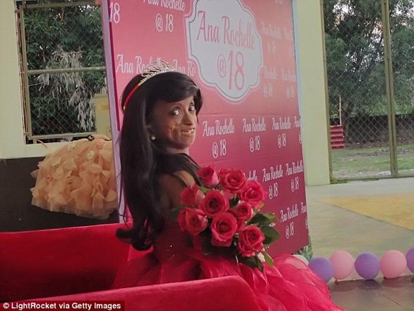 Gadis 'Tertua' di Filipina Rayakan Ulang Tahun Ke-18 dengan Meriah
