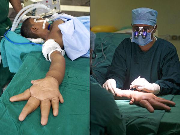 Bocah dengan Tangan Terbesar di Dunia Ini Akhirnya Jalani Operasi