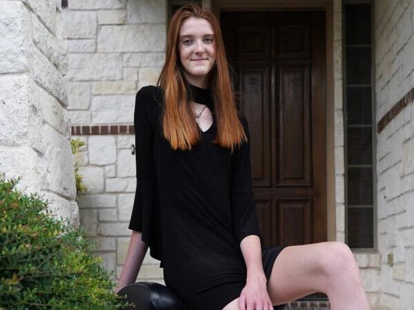 Remaja 17 Tahun Ini Pecahkan Rekor Pemilik Kaki Terpanjang di Dunia