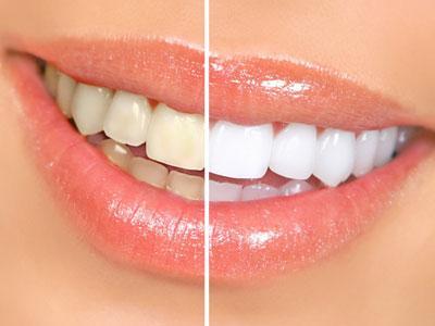 Inilah Aturan Penggunaan Pasta Gigi Pemutih