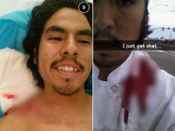 Nekat, Pria Ini Sempatkan Foto Selfie Saat Tertembak!