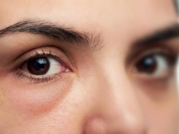 Inilah Penyebab Mata Bengkak Saat Baru Bangun Tidur