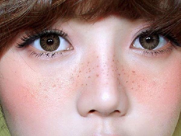 Bintik-Bintik Hitam di Wajah Mengganggu Penampilan? Intip Cara Menghilangkannya Yuk!