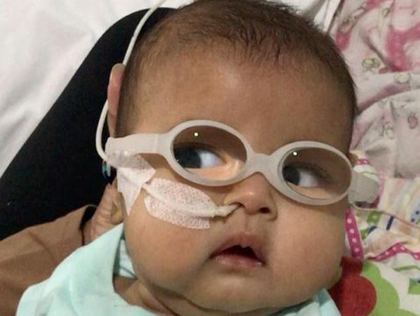 Tak Hanya Operasi Katarak, Ini Hal Menyedihkan yang Harus Dilewati Bayi Asri Welas