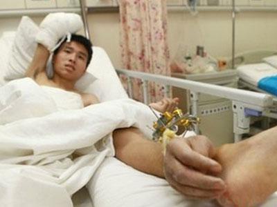 Hii, Dokter China Hidupkan Tangan di Pergelangan Kaki