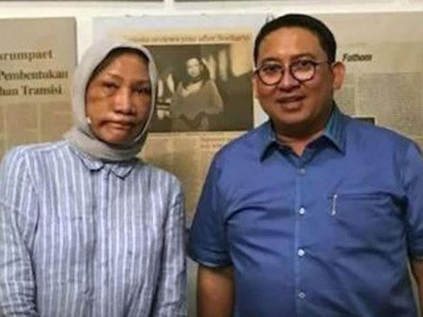Kata Ratna Sarumpaet Soal Tidak Ada Penganiayaan di Bandung: Itu Hanya Khayalan