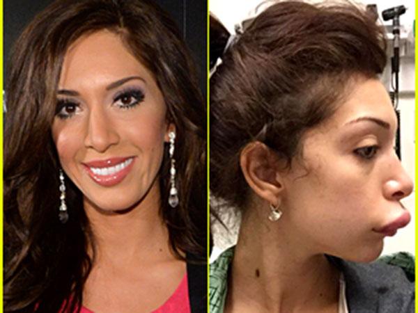 Lakukan Injeksi untuk Mempertebal, Bibir Bintang Reality Show Ini Malah Membengkak