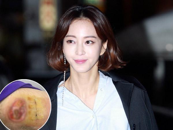 Han Ye Seul Unggah Foto Terbaru Luka Menganga Akibat Malpraktik, Makin Ngeri!