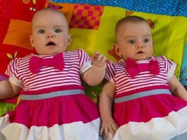 Wah, Bayi Kembar Ini Dilahirkan Berselang Hampir Dua Bulan!