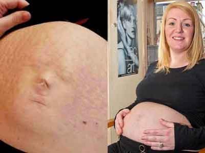Wow, Wajah Bayi Muncul di Perut Ibunya