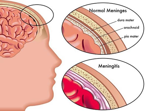 Kenali dan Cari Tahu Penyakit Meningitis, Penyakit yang Diderita Oleh Olga Syahputra