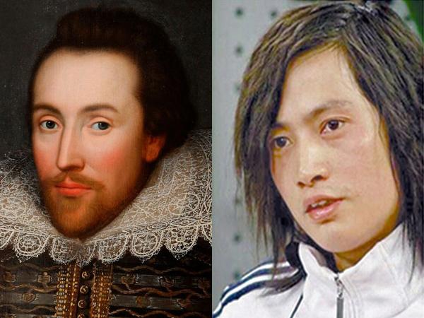 Demi Miliki Wajah William Shakespeare, Seorang Penulis Habiskan 3 Miliar untuk Operasi Plastik!