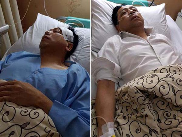 Perban Palsu dan Hal Pura-pura Lain yang Terbongkar di Persidangan Kasus Kecelakaan Setya Novanto