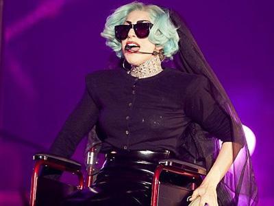 Pasca Operasi, Lady GaGa Tulis Surat Untuk Fans
