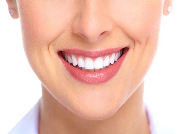 Viral di TikTok, Cara Putihkan Gigi dengan Bleaching Berbahaya