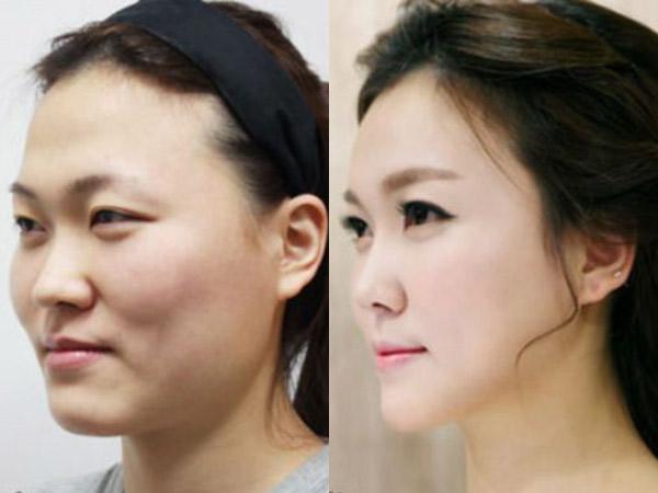 Digandrungi Namun Jadi Kontroversi, Ini Fakta Operasi Plastik di Korea Selatan