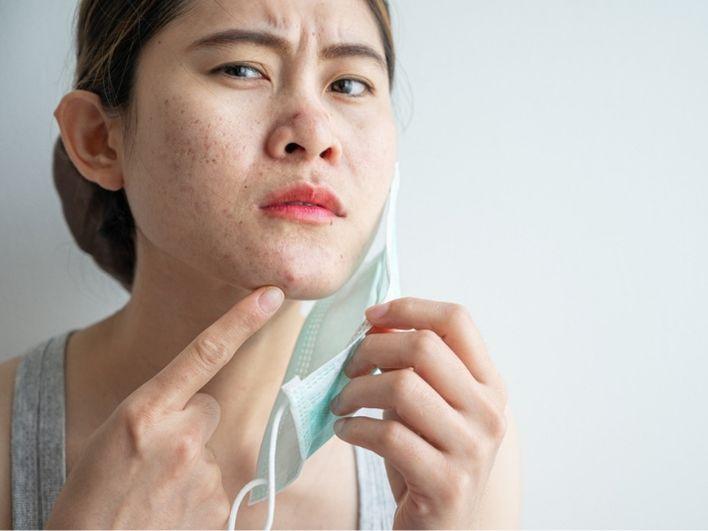 Nggak Cuma Skincare-an, Kurangi Bicara Saat Pakai Masker Juga Cegah Jerawat