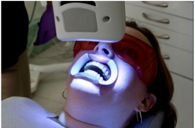 Hati Hati Bleaching Gigi Dengan Sinar Uv Bahayakan Kesehatan Mata
